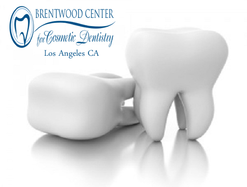 Root Canals Los Angeles California